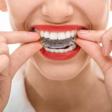 Invisalign – Zahnspangensystem